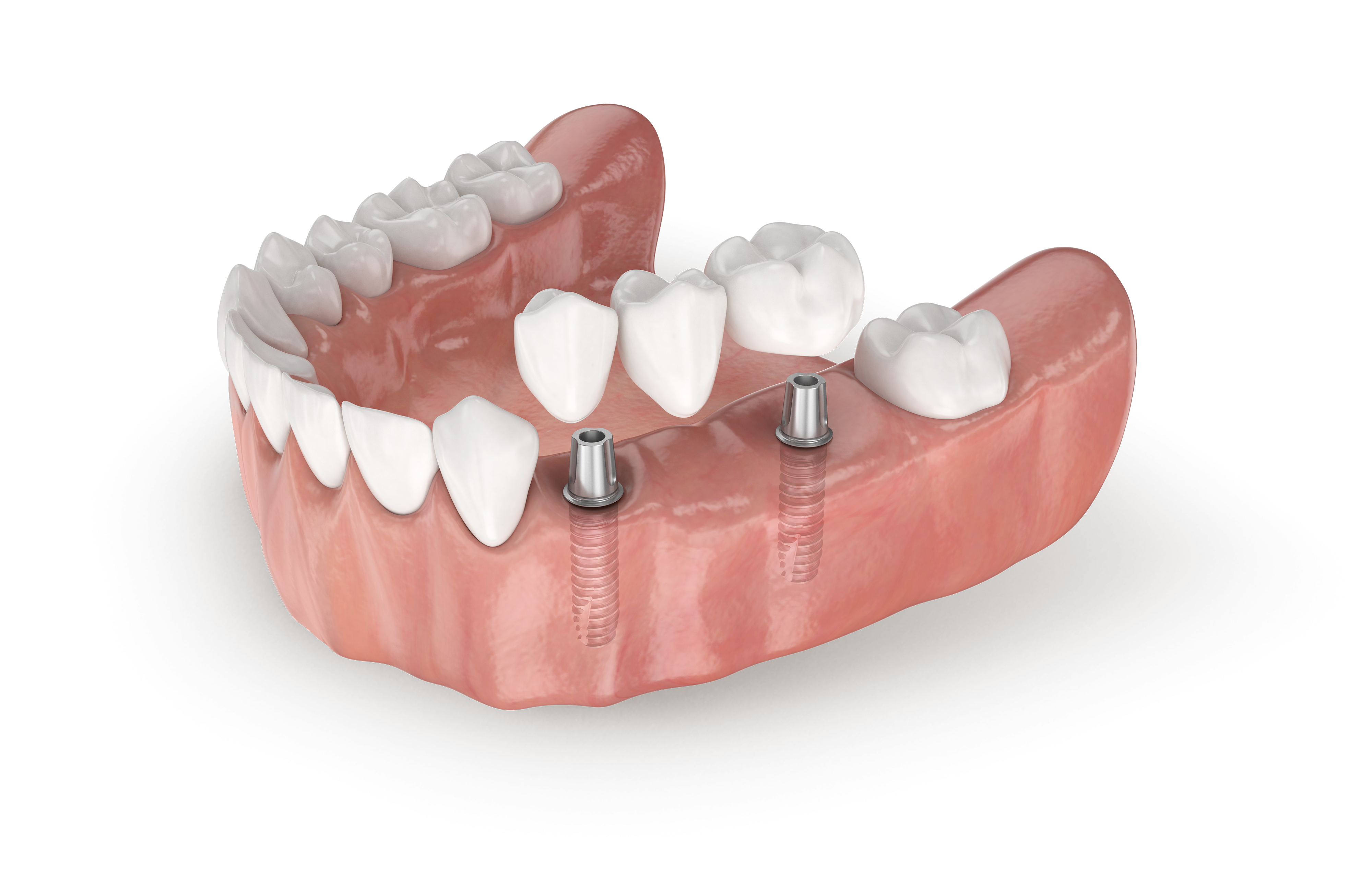 Flipper Tooth: A Temporary Tooth Replacement After Extraction Tooth replacement options pictures
