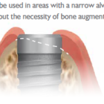 Ideal implant for problematic conditions