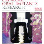 Effect of abutment height and implant depth position on peri‐implant bone loss
