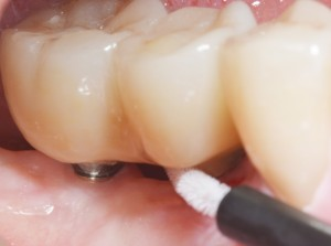 The tested interdental patency.