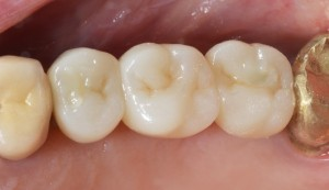 Occlusal closures with composite.