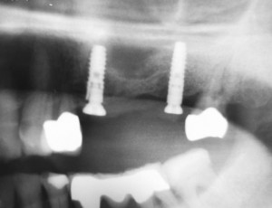 Postoperative control image. The gingiva former on 24 still has to be retightened.